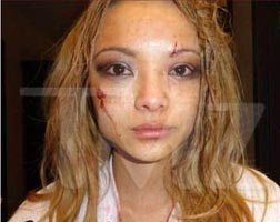 Tila Tequila Beaten Up