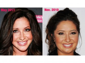 Bristol Palin before and after
